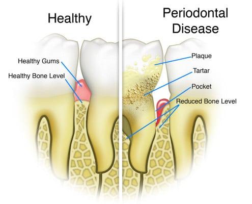 Healthy periodontist Melbourne