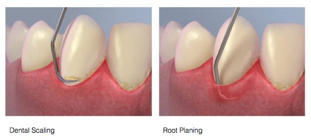 Dental Scaling and root planing